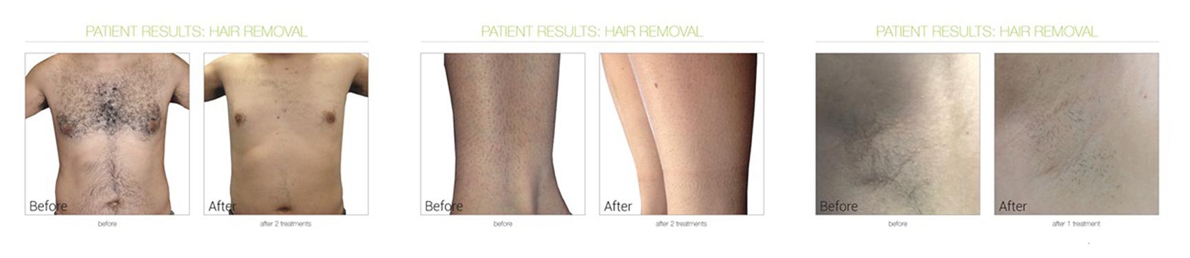 Hair-Treatment
