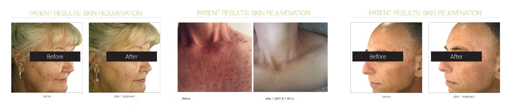 IPL-Skin-Pix